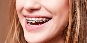 Create websites for Orthodontist